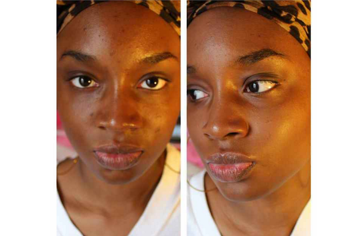 How to get rid of black spots on your face in just 15 minutes theinfong.com 700x460