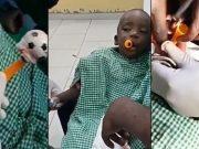 Toy stuck in a boy's throat