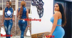 Chika Ike plastic surgery