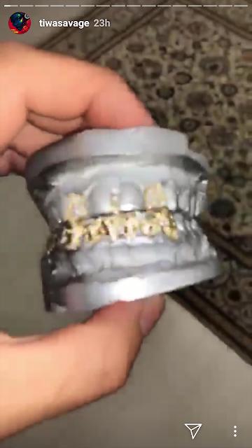 Tiwa Savage teeth