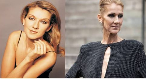 Photos of what Celine Dion looked like before and now