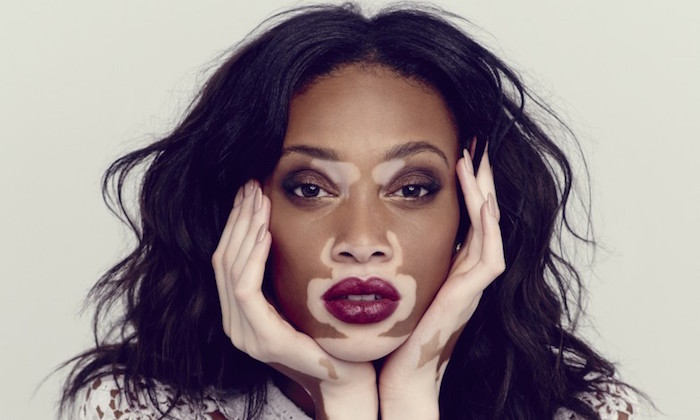 Winnie-Harlow-15 hottest models who live with chronic diseases and disabilities (With Pictures)- theinfong.com jpeg-700x420