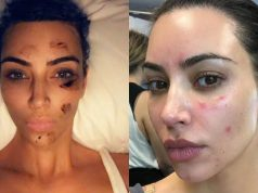See the terrible Skin disease Kim Kardashian is battling with (Photos)